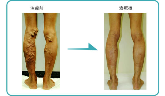 下肢静脈静脈症例2